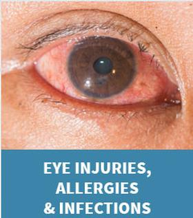 Graphic link to the Eye Injuries, Allergies and Infections page